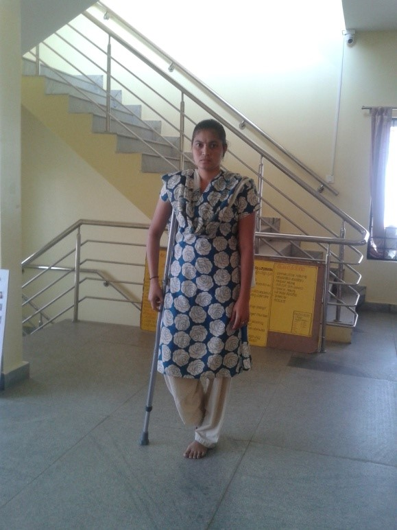 Nirmala, with polio disability, gets Bilateral Auxiliary Crutches | APD India