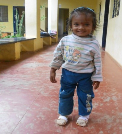 Success Story of Karthik in RSO Program for club feet treatment