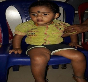 Success Story of Raghu for GDD in Early Intervention Program